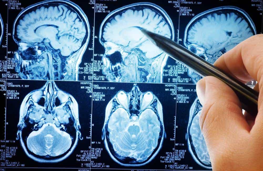 اسکن مغزی